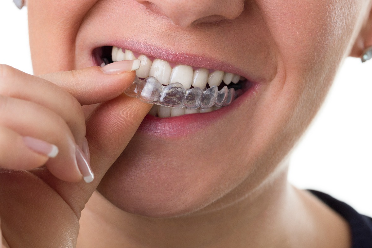 person wearing clear braces