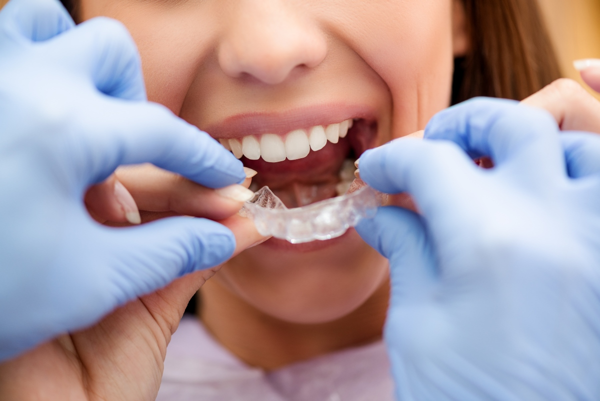 woman getting fitted with clear braces